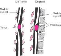 Mielitis - Información médica en Ferato, enciclopedia de ...