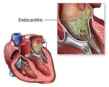 Resultado de imagen para Endocarditis