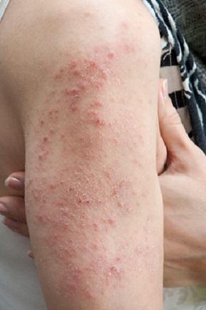 herpetiform dermatitis)