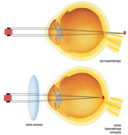 b56523f7a8 La miopía es cuando la luz que entra al ojo se enfoca de manera incorrecta,  haciendo que los objetos que están lejos se vean borrosos. La miopía es un  tipo ...