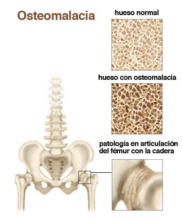 osteomalacia - información médica en ferato, enciclopedia de la, Skeleton