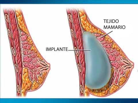 Los cuidados antes y después de los implantes mamarios