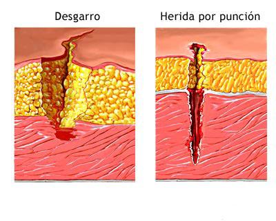Clasificacion heridas limpias contaminadas