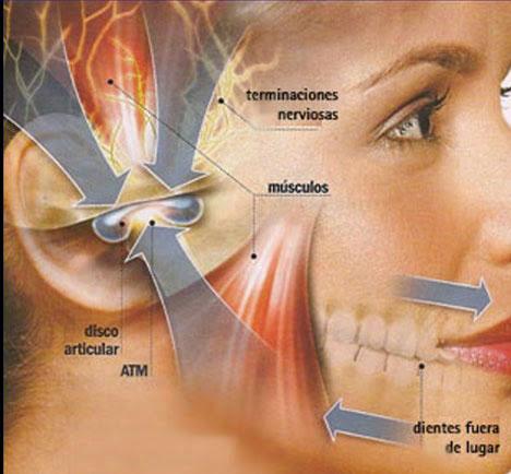 Trastornos de la articulación temporomandibular - Información médica ...