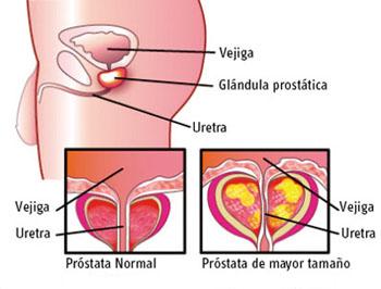 Prosztatagyulladás patogenezise