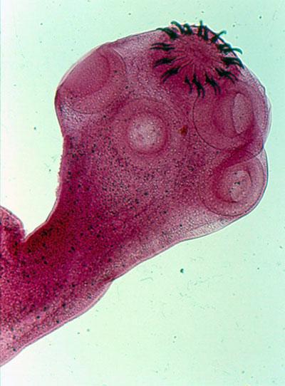 espermatozoide encuentra huevo - SexVideosXXX