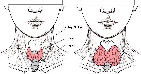 Tiroiditis Subaguda Información Médica En Ferato Enciclopedia De