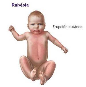 La psoriasis de la foto al niño de 1 año