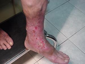 Como se ve la psoriasis a los niños