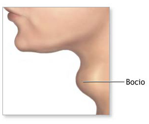 El bocio da como resultado un bulto en la zona de la laringe