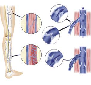 Arreglar los asteriscos vasculares por el láser en los pies en spb