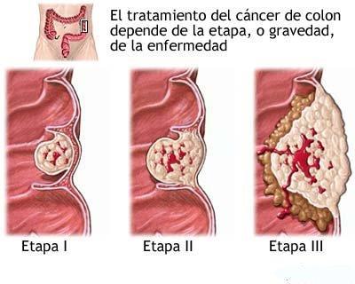 El cáncer de colon es una patología causada por la aparición de un ...
